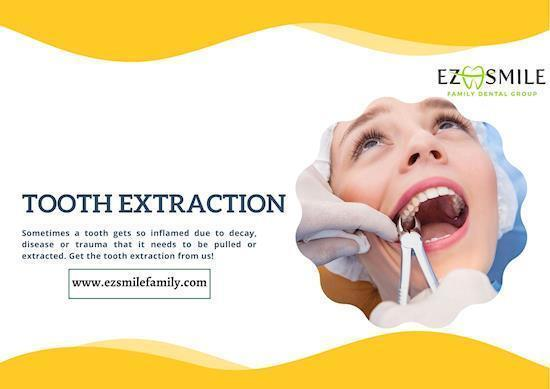 Tooth Extraction San Rafael | EZ Smile Family Group