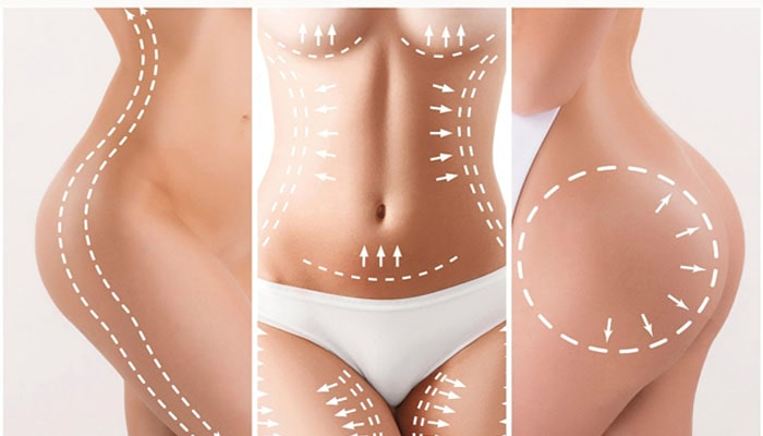 Liposuction Treatment in Mumbai