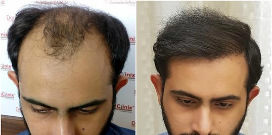 Hair Transplant Results in New Delhi