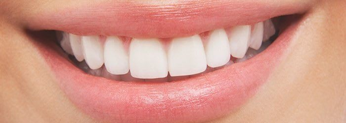 Best Teeth Whitening Dentist in North York