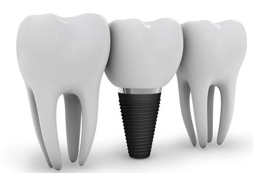 Cheap Dental Implants Melbourne - Dental Implant Professionals