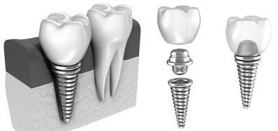 Cheap Dental Implants Melbourne |Best Replacements for Missing Teeth