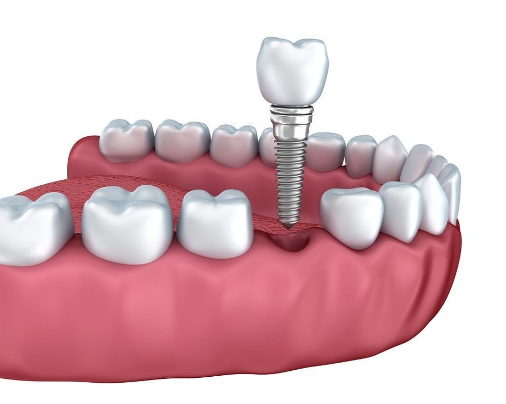 Dental/Tooth Implant Cost in Ahmedabad, India