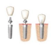 Get Cheap Dental Implants Sydney