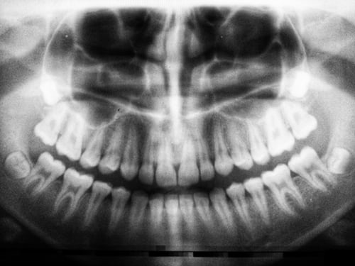 Hairline Tooth Fractures: What You Need To Know