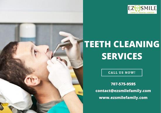Teeth Cleaning Services at Santa Rosa