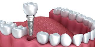 Get Back your Smile by Dental Implants Treatment | Dentist in Coventry