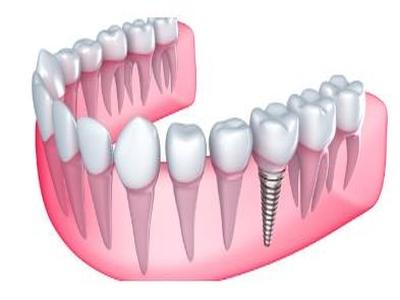 Affordable Dental Implants in Sydney