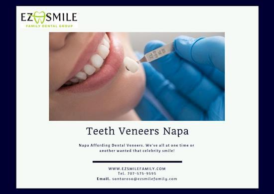 Teeth Veneers – Napa Dental Care