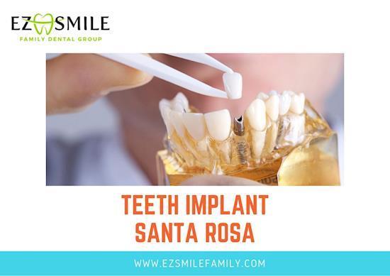 Teeth Implant Santa Rosa - EZ Smile Family Dental Group