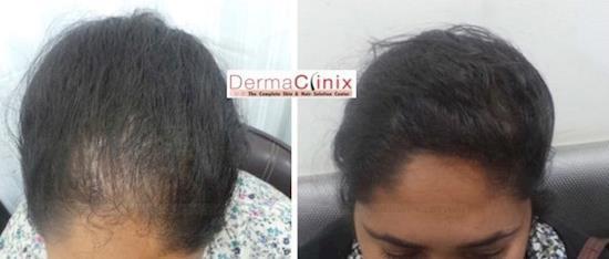 Prp Treatment in Delhi Price
