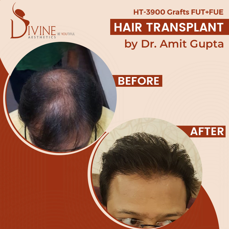 Is Hair Transplant Shocking Factor for you?