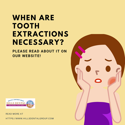 When are tooth extractions necessary?