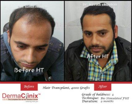 All About Hair Transplant and How to Get Rid of Baldness