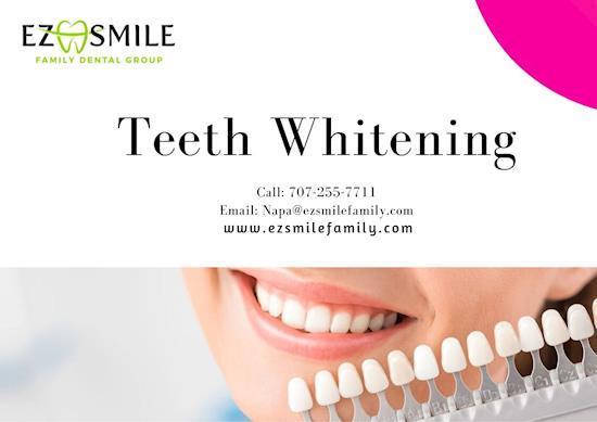 Teeth Whitening - EZ Smile Family Dental Group - Napa