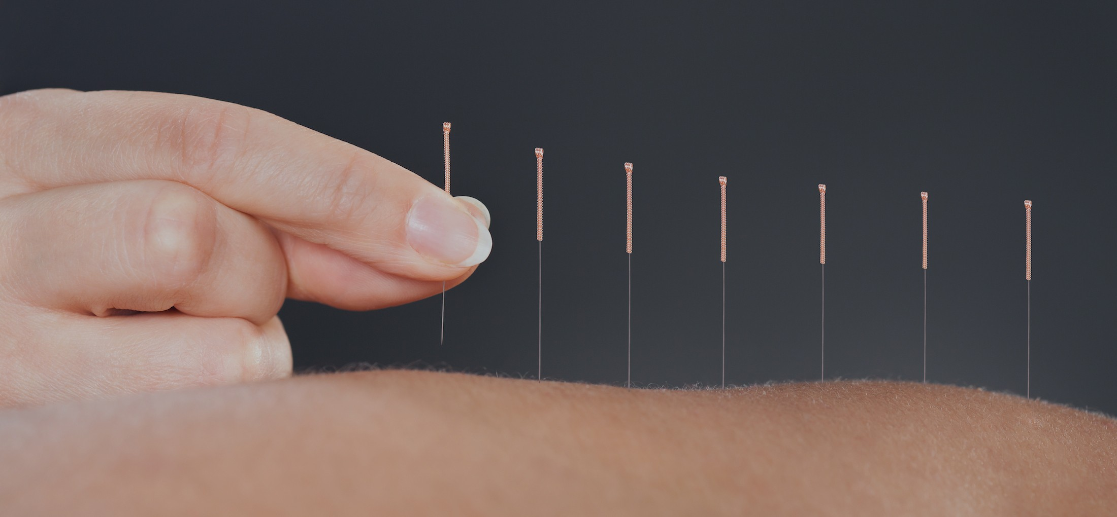 Best Acupuncture in Melbourne