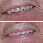 Burton Denture Clinic
