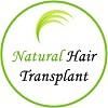Natural Hair Transplant India Icon