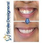 Smile Designers Icon