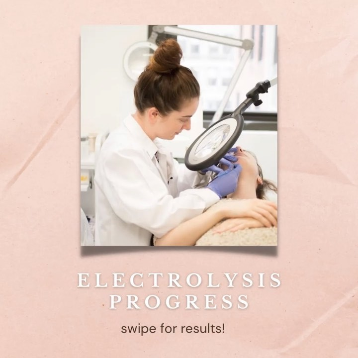 Electrolysis Hair Removal Experience
