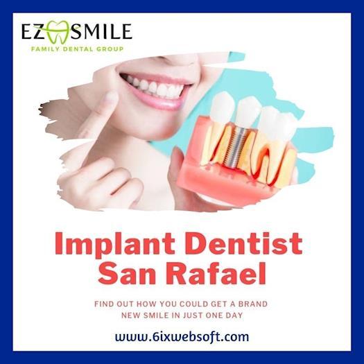 Implant Dentist San Rafael – EZ Smile Family