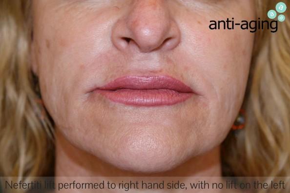 Skin Tightening Melbourne - anti-aging Cosmetic & Laser