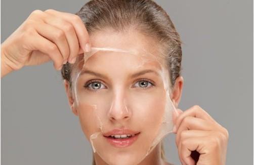 Chemical Peel | Chemical Skin Peel Facial Treatments | TheSkinNurse.ie