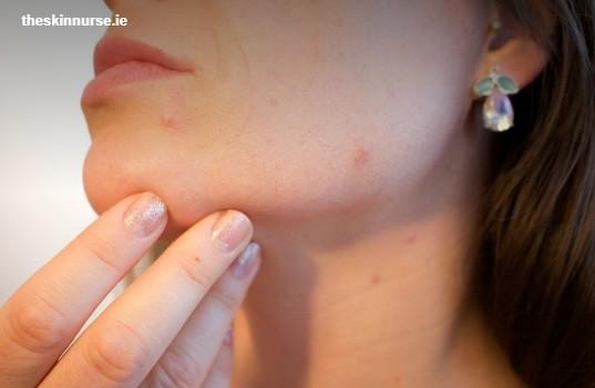 Acne Treatments | Ireland's Best Acne Treatment | TheSkinNurse.ie
