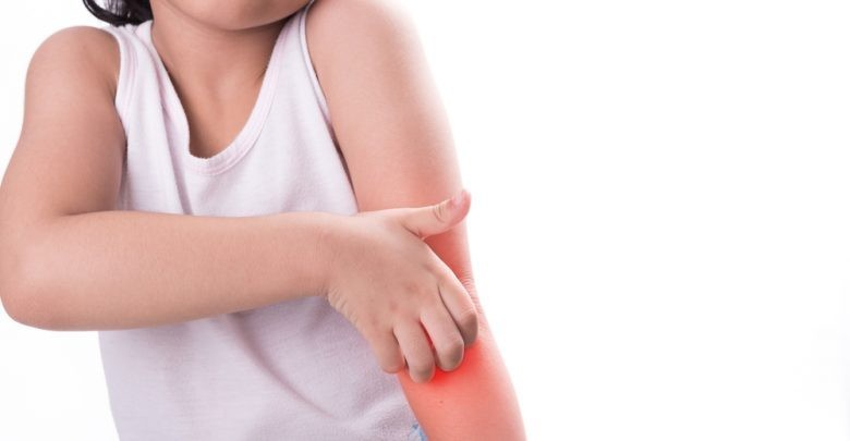 child scratching her arm