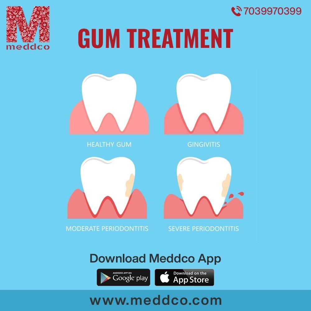 Gum treatment-Meddco