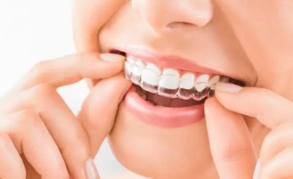 RelyOn Dental