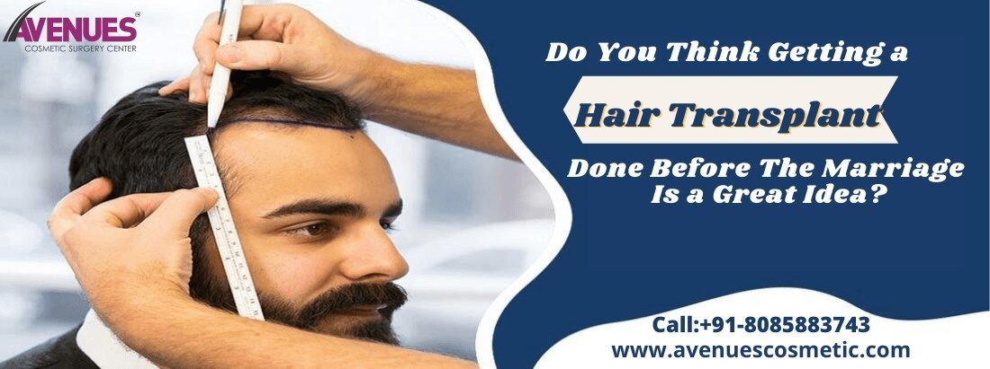 Consult With Hair Doctor in Ahmedabad Hair Transplant is Great Before Marriage