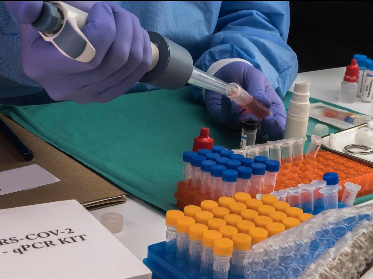 A cheap steroid dramatically reduced coronavirus deaths in a 'major breakthrough' trial.