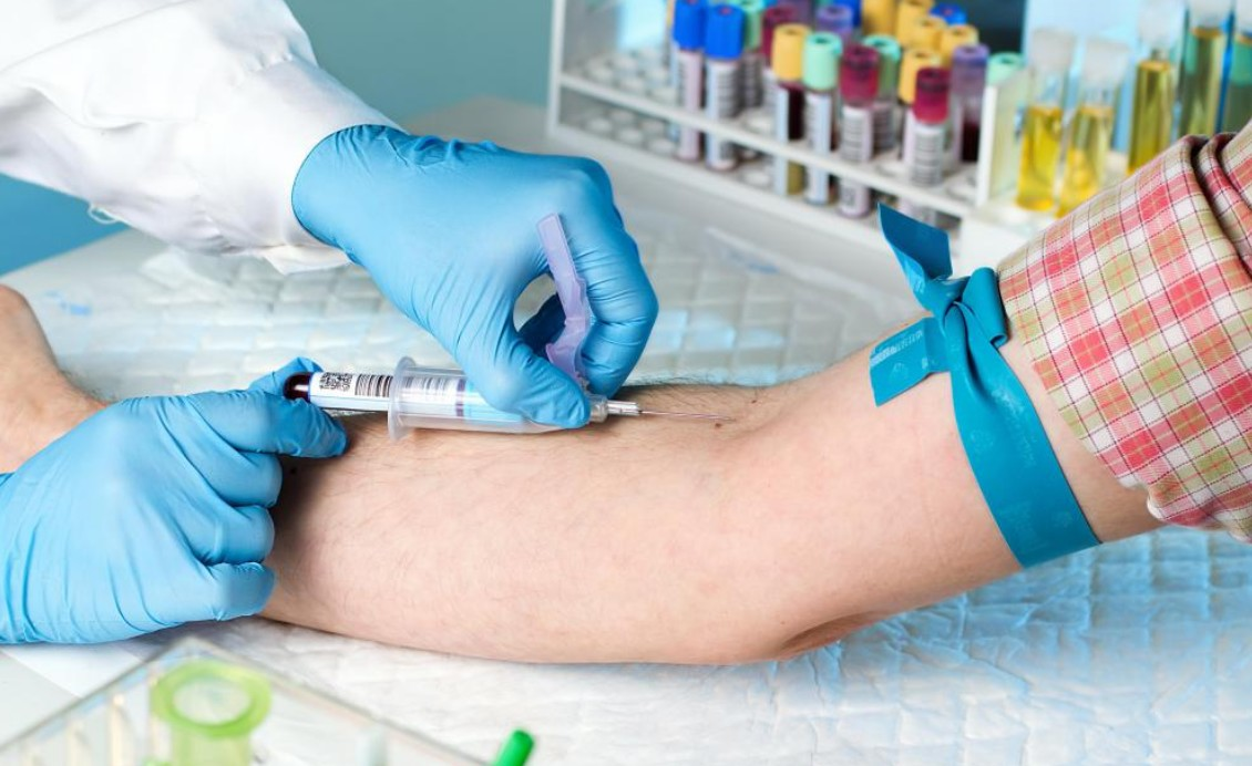 All You Need to Know About Hs-CRP Test