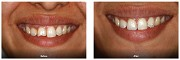 Broken Front Teeth Treatment - Smilesforever the Best Dental Clinic in Mumbai