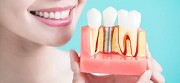 Recommended A Dental Implant? Here is what you must know!