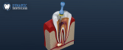 Top Picks On Why You Should Go For Root Canal Treatment Soon Enough